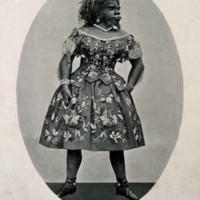Julia_Pastrana,_a_bearded_lady._Reproduction_of_a_photograph_Wellcome_V0007256 (1).jpg